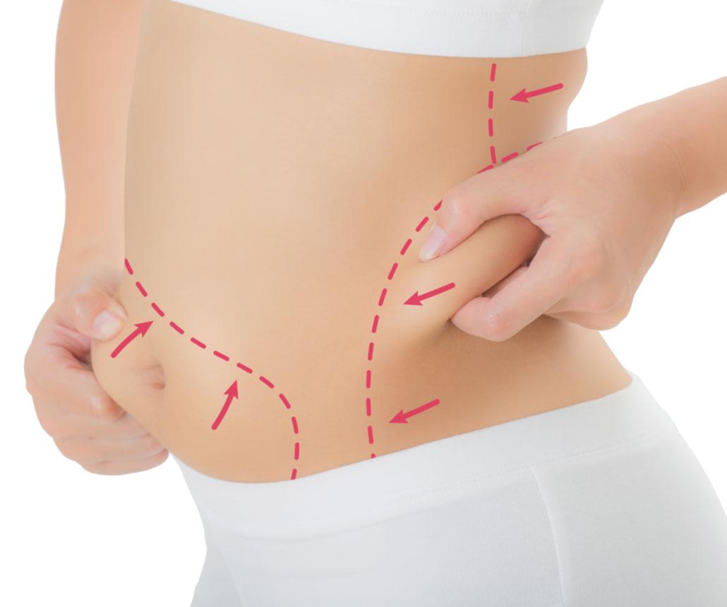 perdita di peso con criolipolisi prima dopo 100 kg